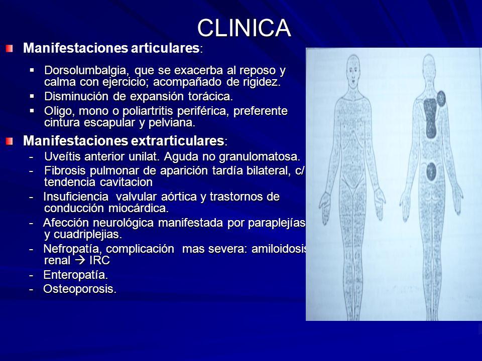 CLINICA Manifestaciones articulares: Manifestaciones extrarticulares: