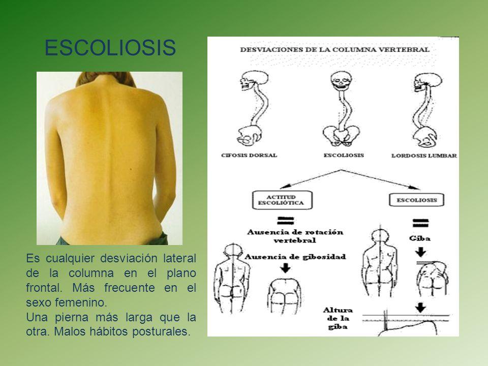 ESCOLIOSIS Es cualquier desviación lateral de la columna en el plano frontal. Más frecuente en el sexo femenino.