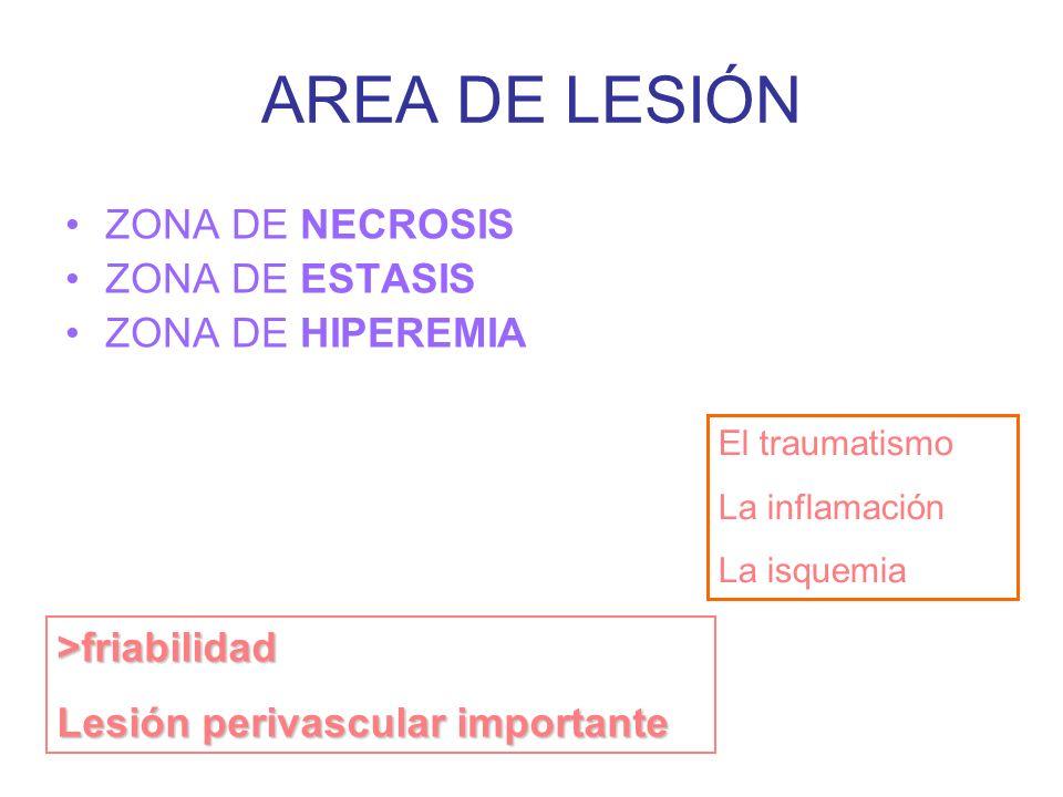 AREA DE LESIÓN ZONA DE NECROSIS ZONA DE ESTASIS ZONA DE HIPEREMIA