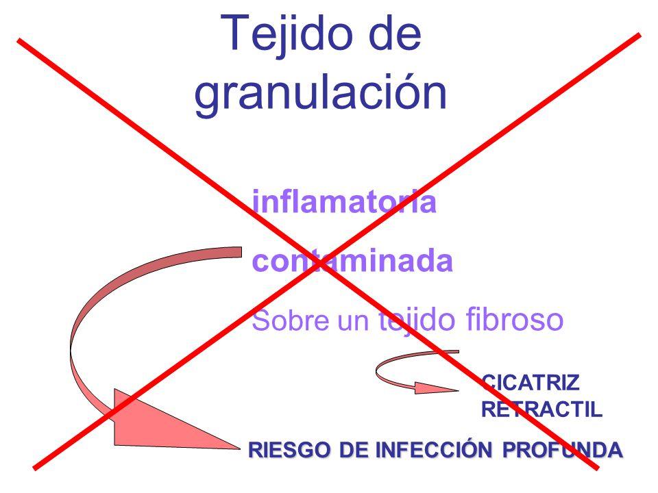 Tejido de granulación inflamatoria contaminada Es una respuesta