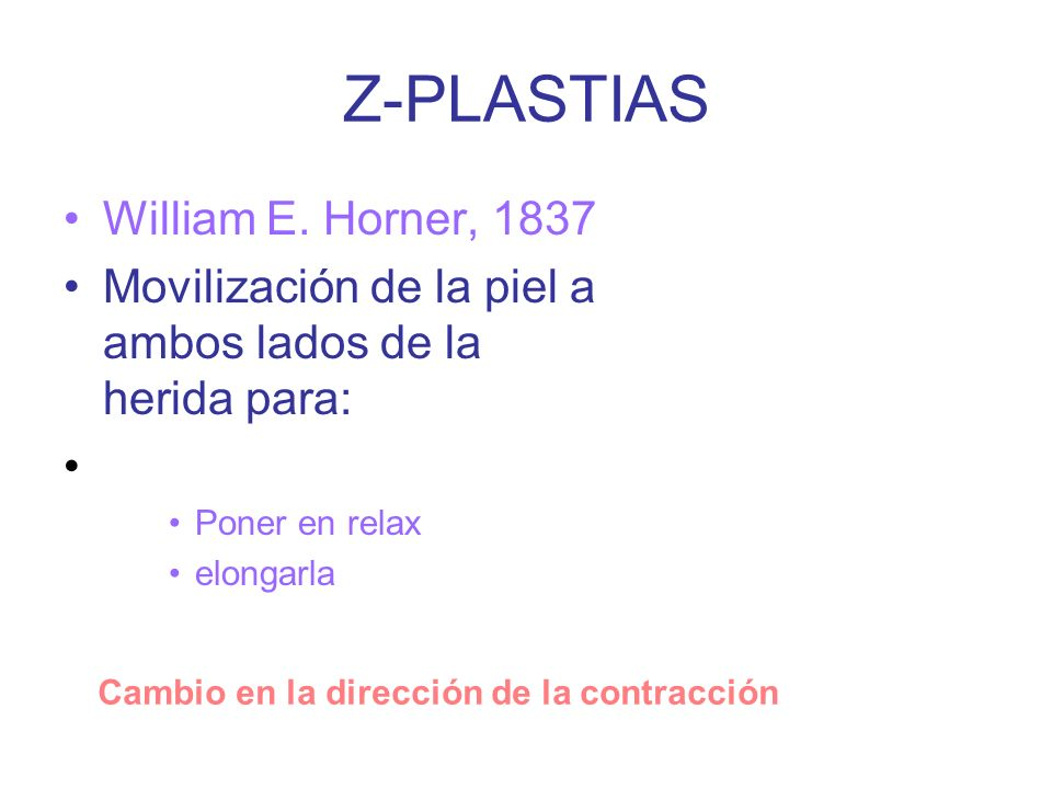 Z-PLASTIAS William E. Horner, 1837