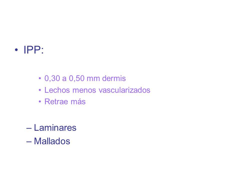 IPP: Laminares Mallados 0,30 a 0,50 mm dermis