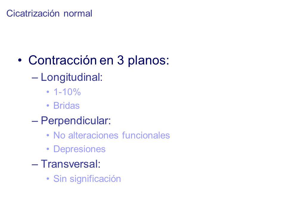 Contracción en 3 planos: