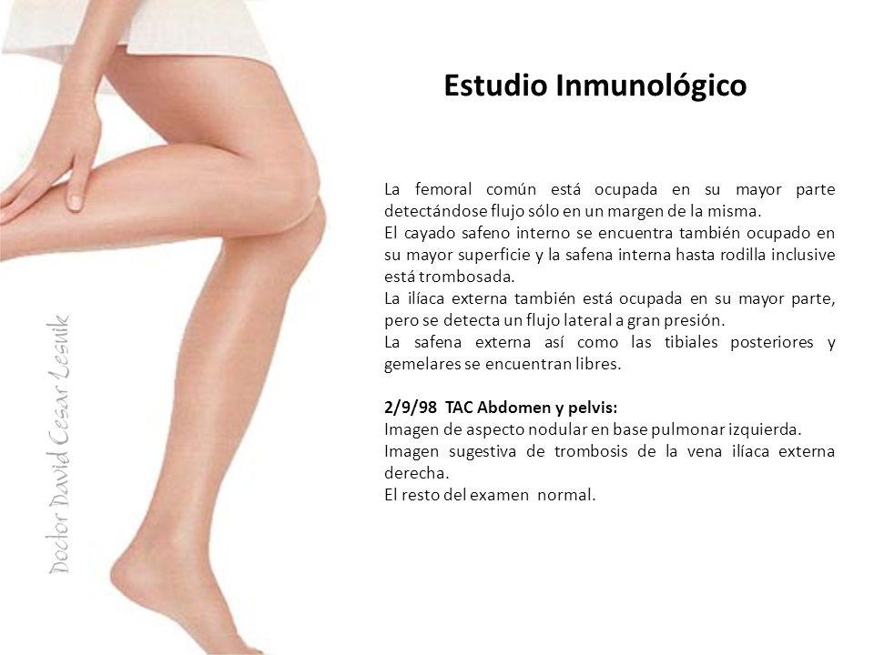 Estudio Inmunológico La femoral común está ocupada en su mayor parte detectándose flujo sólo en un margen de la misma.