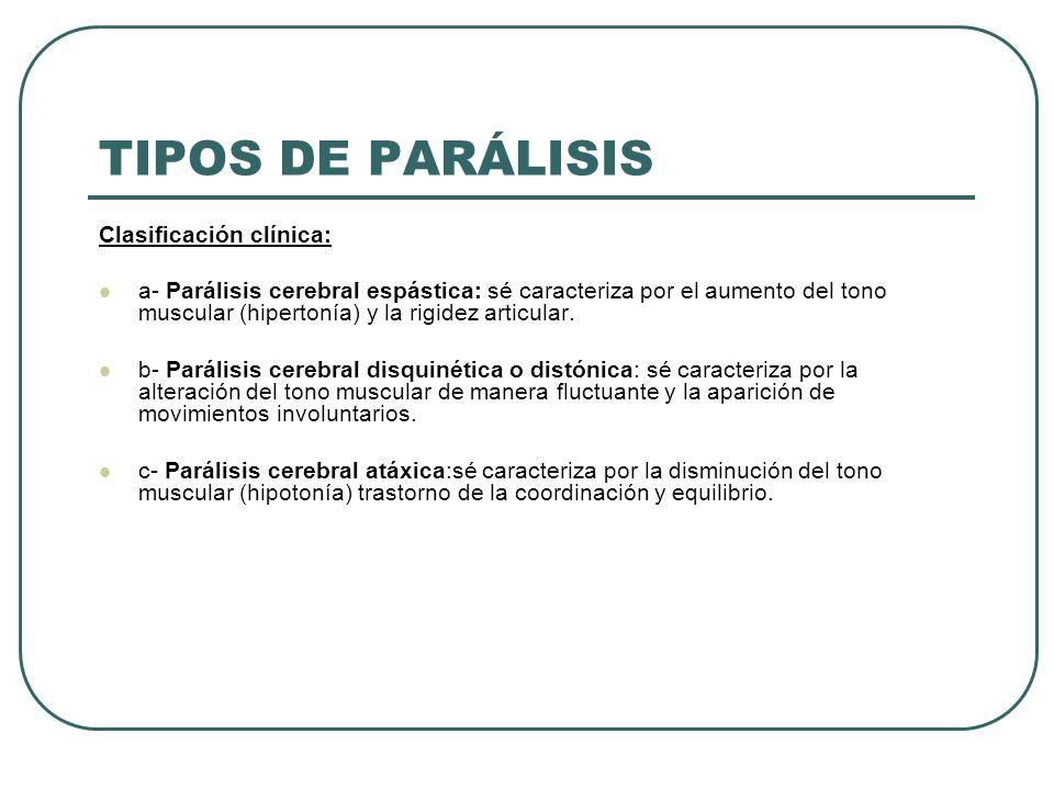 TIPOS DE PARÁLISIS Clasificación clínica: