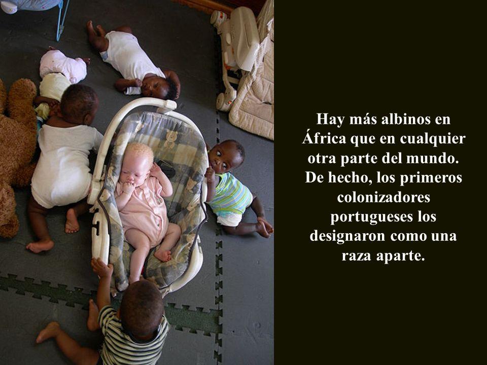 Hay más albinos en África que en cualquier otra parte del mundo