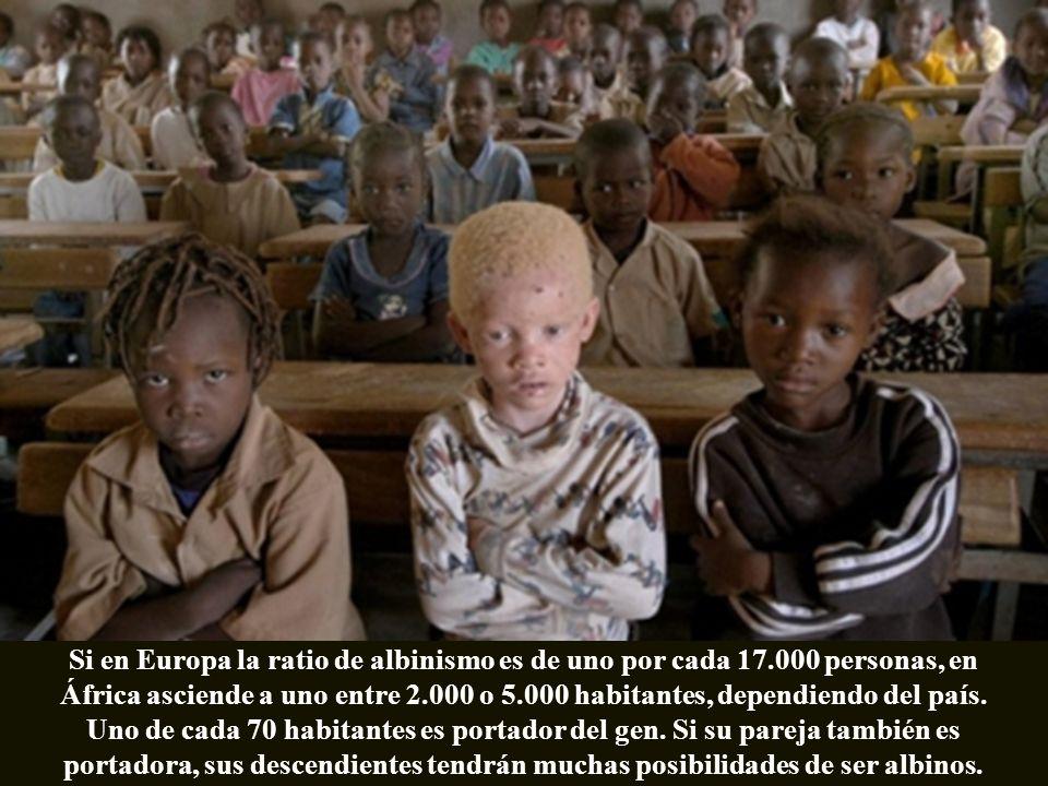Si en Europa la ratio de albinismo es de uno por cada 17