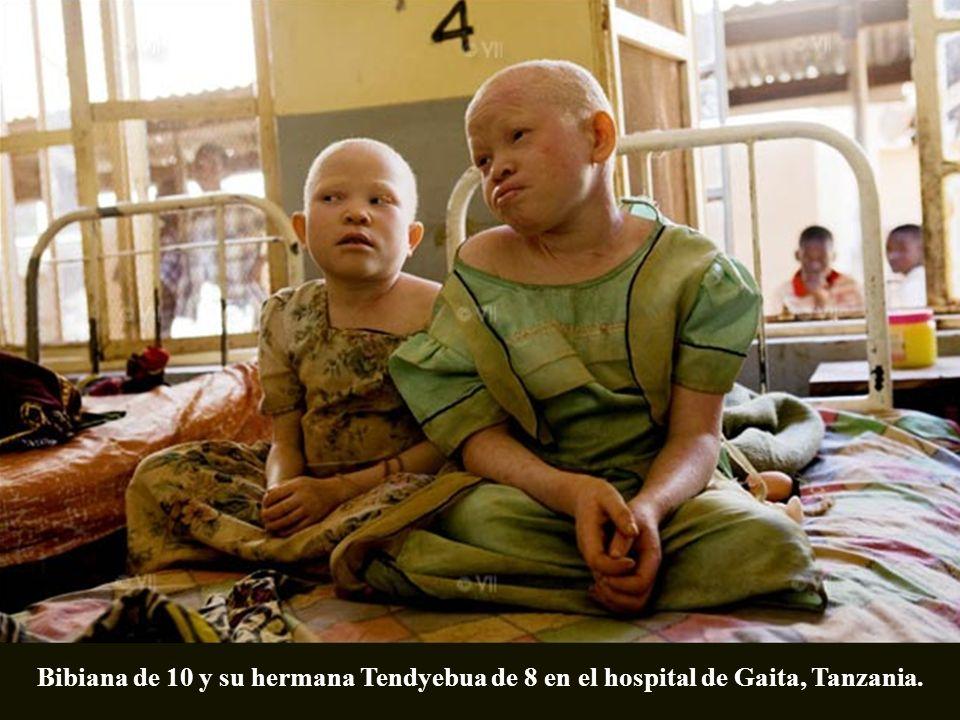 Bibiana de 10 y su hermana Tendyebua de 8 en el hospital de Gaita, Tanzania.