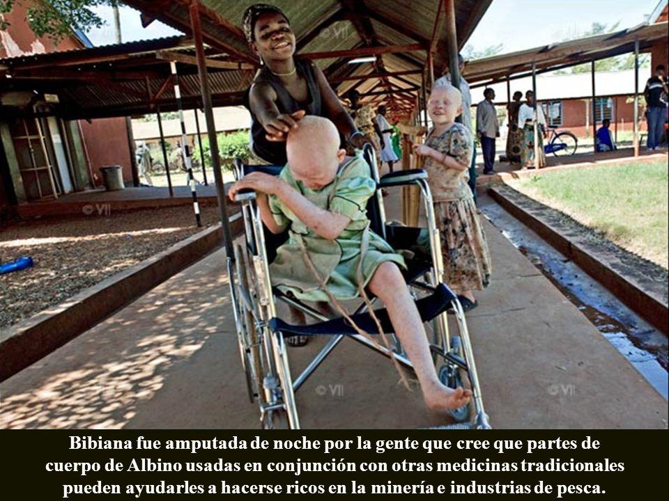 Bibiana fue amputada de noche por la gente que cree que partes de cuerpo de Albino usadas en conjunción con otras medicinas tradicionales pueden ayudarles a hacerse ricos en la minería e industrias de pesca.