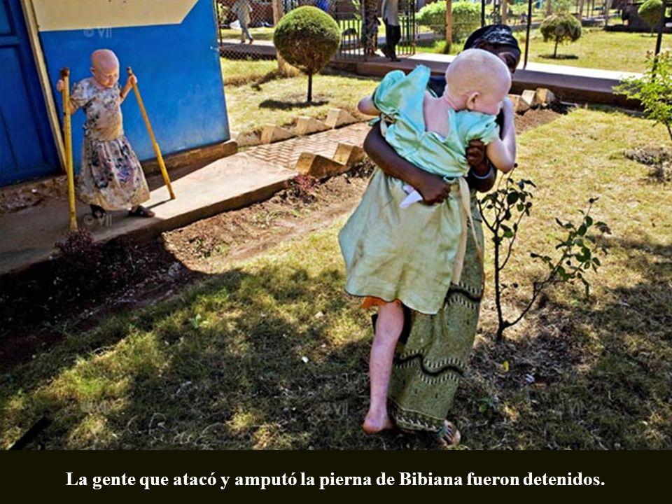La gente que atacó y amputó la pierna de Bibiana fueron detenidos.