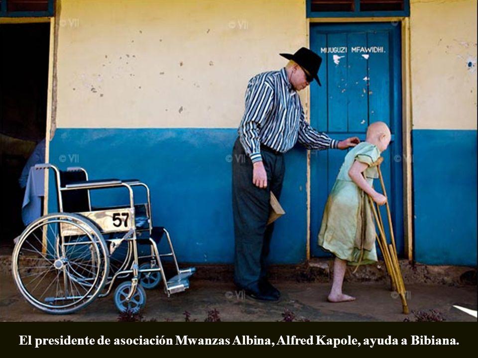 El presidente de asociación Mwanzas Albina, Alfred Kapole, ayuda a Bibiana.