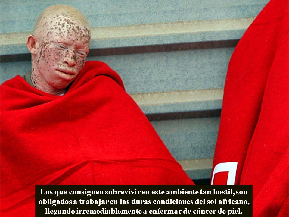 Los que consiguen sobrevivir en este ambiente tan hostil, son obligados a trabajar en las duras condiciones del sol africano, llegando irremediablemente a enfermar de cáncer de piel.