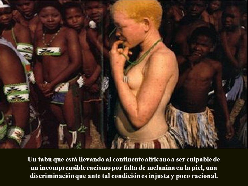 Un tabú que está llevando al continente africano a ser culpable de un incomprensible racismo por falta de melanina en la piel, una discriminación que ante tal condición es injusta y poco racional.