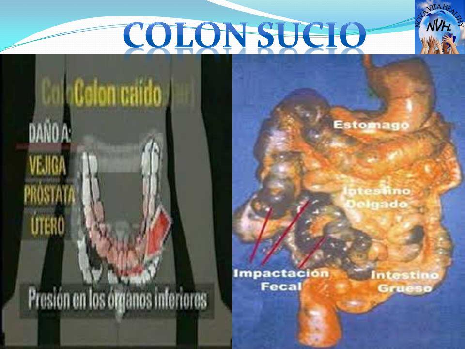 COLON SUCIO