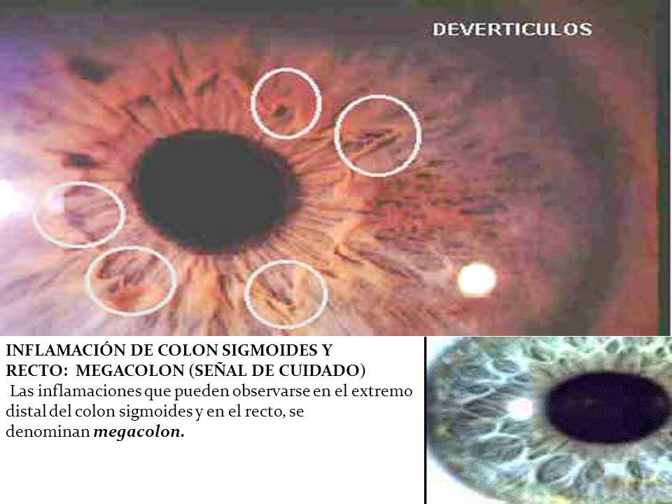 INFLAMACIÓN DE COLON SIGMOIDES Y RECTO: MEGACOLON (SEÑAL DE CUIDADO)