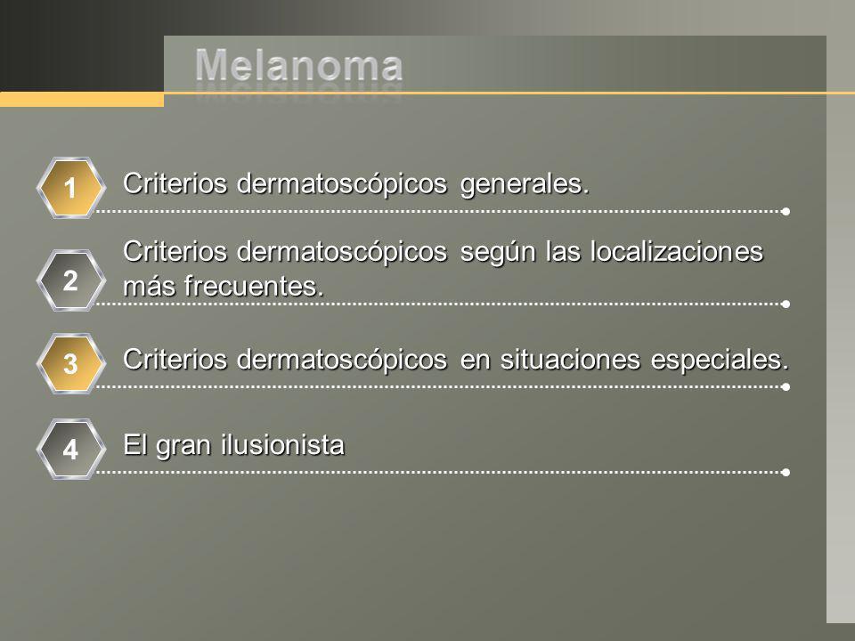 Criterios dermatoscópicos generales.