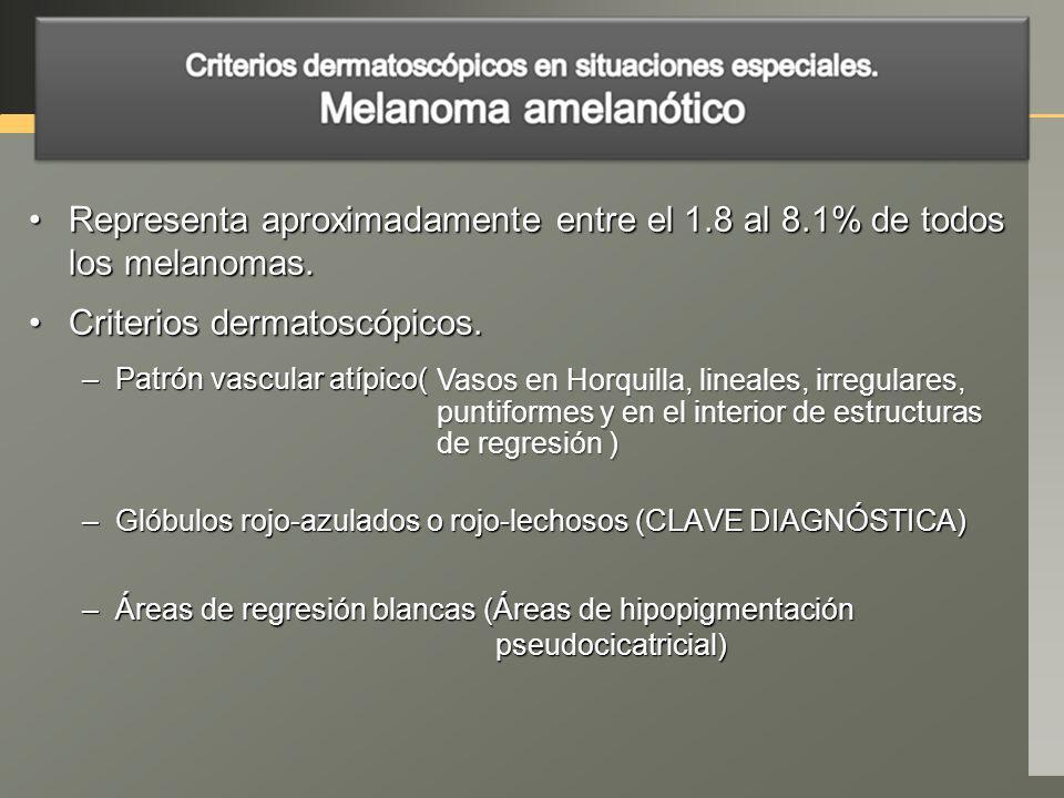 Criterios dermatoscópicos.