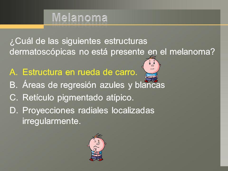 ¿Cuál de las siguientes estructuras dermatoscópicas no está presente en el melanoma