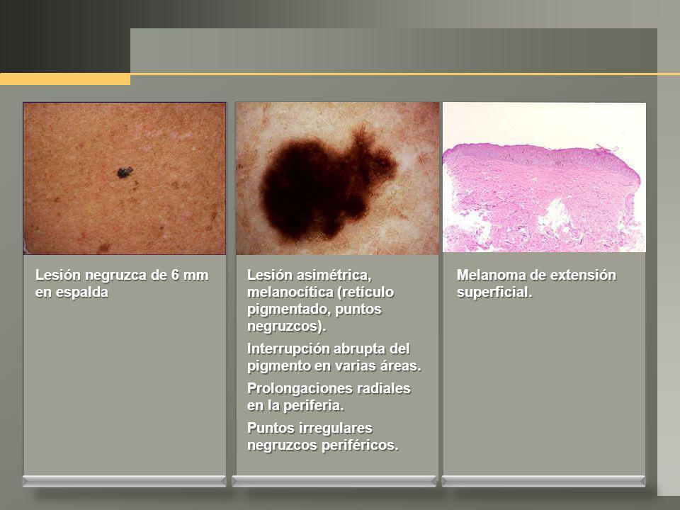 Lesión negruzca de 6 mm en espalda