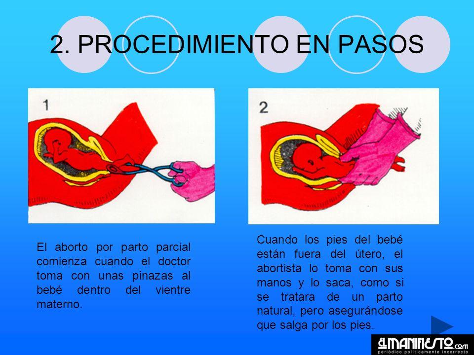 2. PROCEDIMIENTO EN PASOS