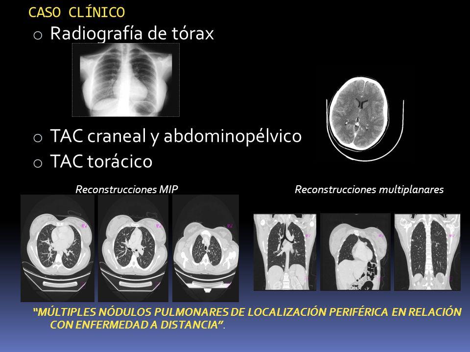 TAC craneal y abdominopélvico TAC torácico