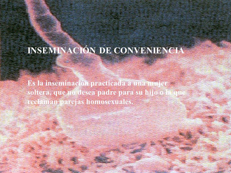 INSEMINACIÓN DE CONVENIENCIA