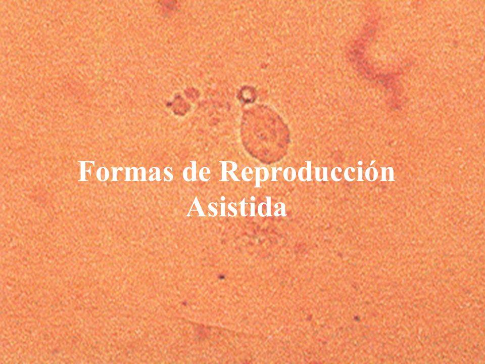 Formas de Reproducción Asistida