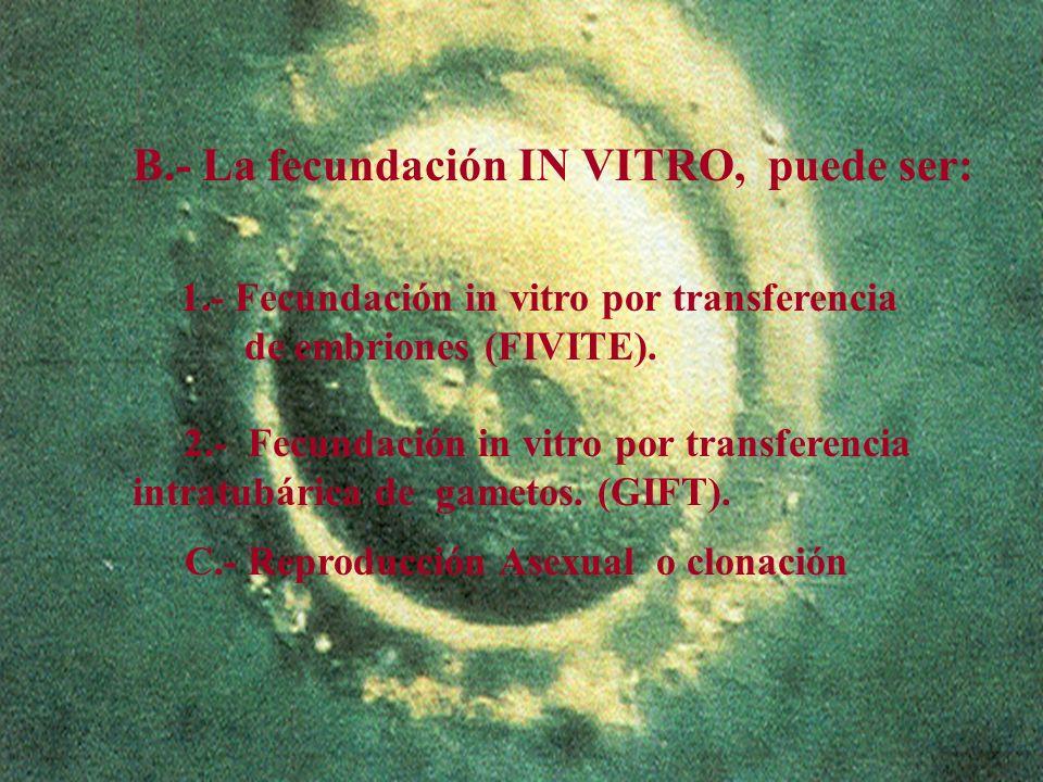 B.- La fecundación IN VITRO, puede ser:
