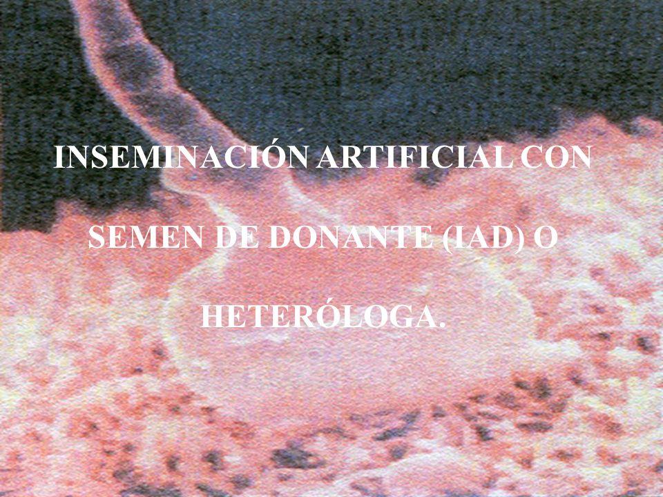 INSEMINACIÓN ARTIFICIAL CON SEMEN DE DONANTE (IAD) O