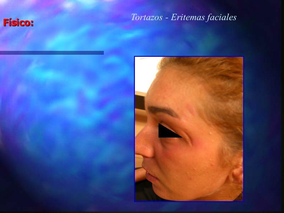 Tortazos - Eritemas faciales