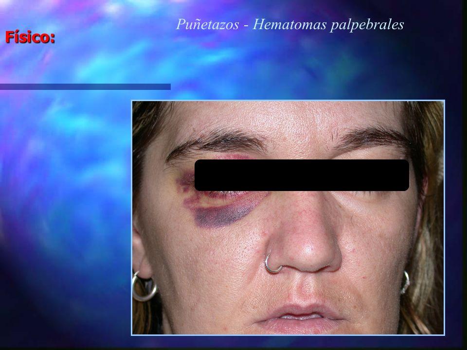 Puñetazos - Hematomas palpebrales