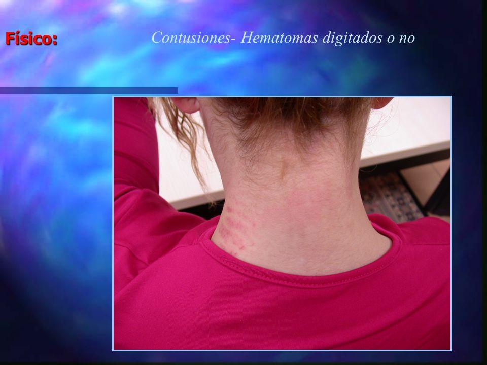 Físico: Contusiones- Hematomas digitados o no