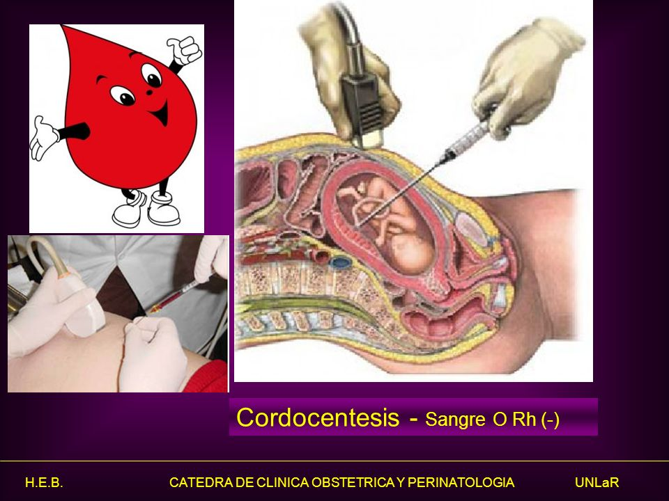 Cordocentesis - Sangre O Rh (-)