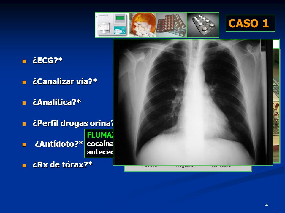 CASO 1 ¿ECG * ¿Canalizar vía * ¿Analítica * ¿Perfil drogas orina *
