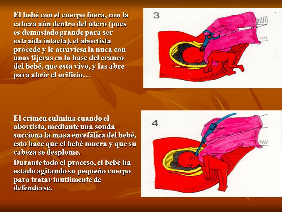 El bebé con el cuerpo fuera, con la cabeza aún dentro del útero (pues es demasiado grande para ser extraída intacta), el abortista procede y le atraviesa la nuca con unas tijeras en la base del cráneo del bebé, que esta vivo, y las abre para abrir el orificio…