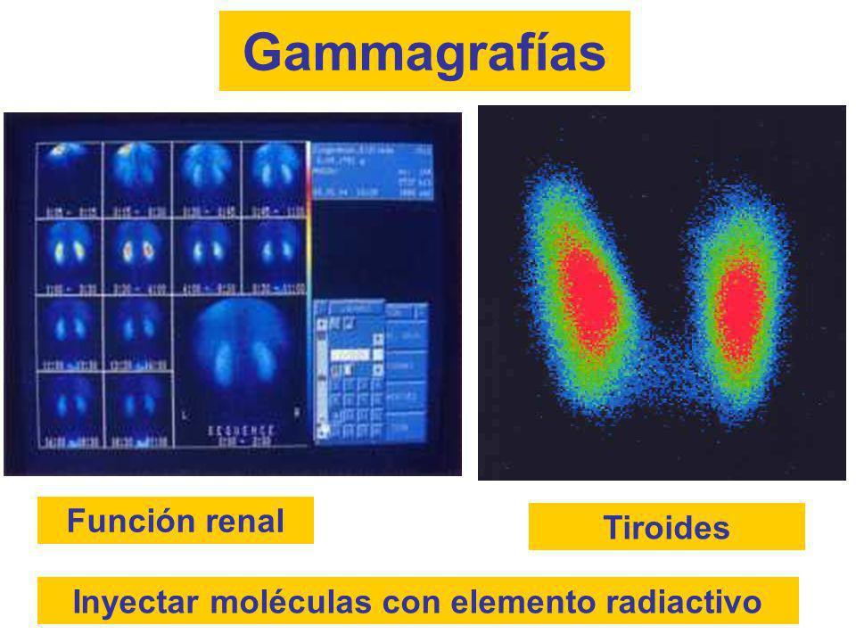 Inyectar moléculas con elemento radiactivo