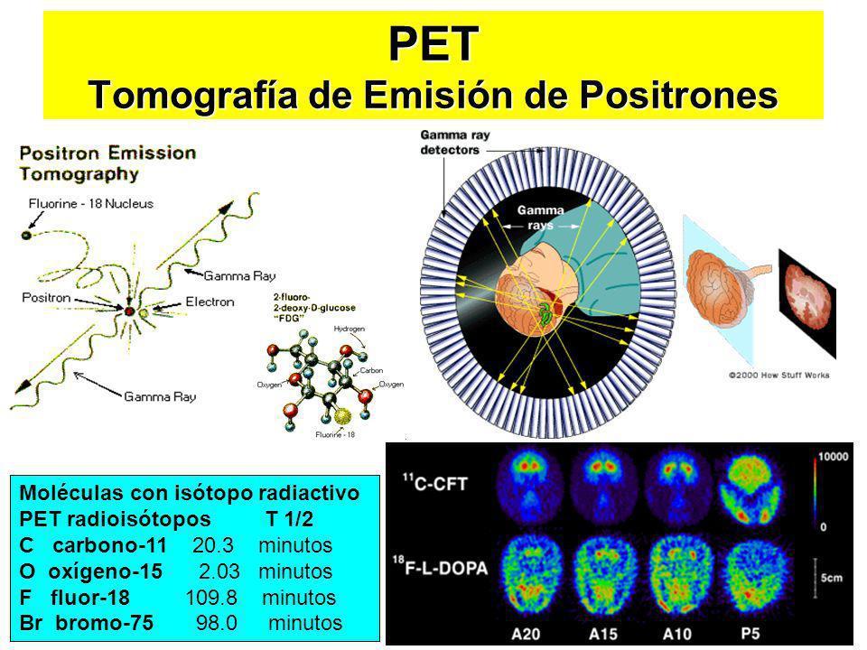 PET Tomografía de Emisión de Positrones