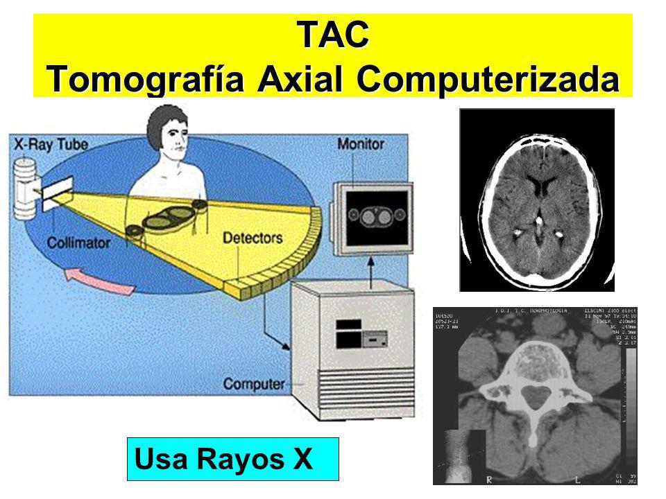 TAC Tomografía Axial Computerizada
