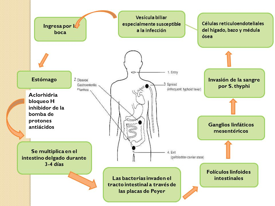 Vesícula biliar especialmente susceptible a la infección