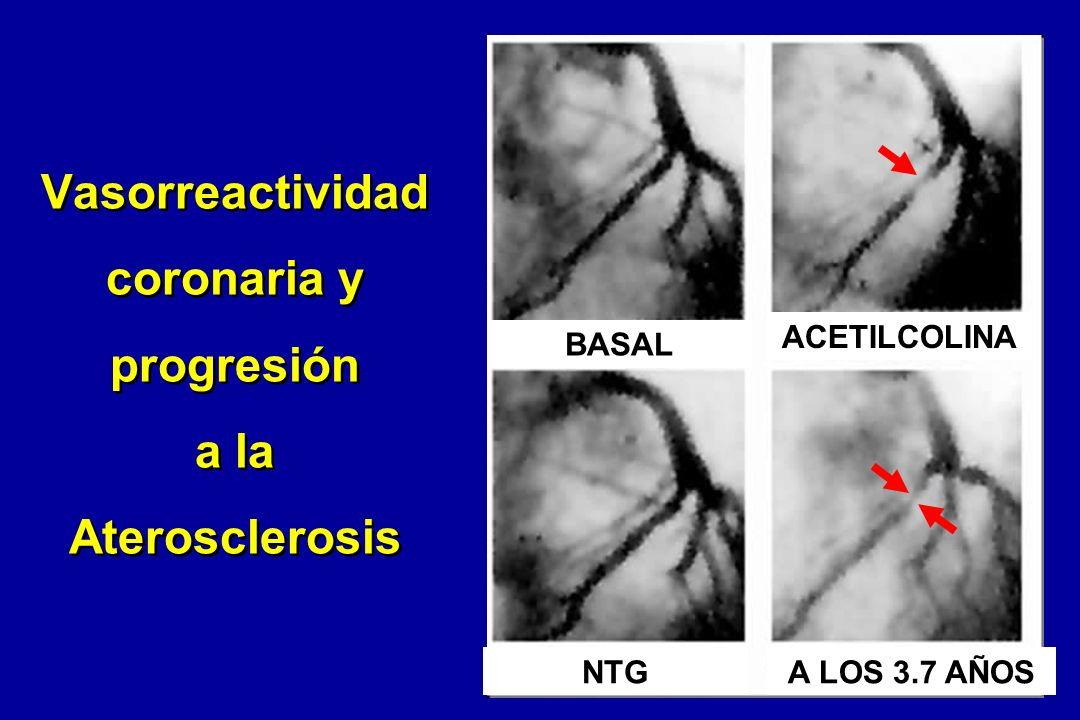 Vasorreactividad coronaria y progresión a la Aterosclerosis
