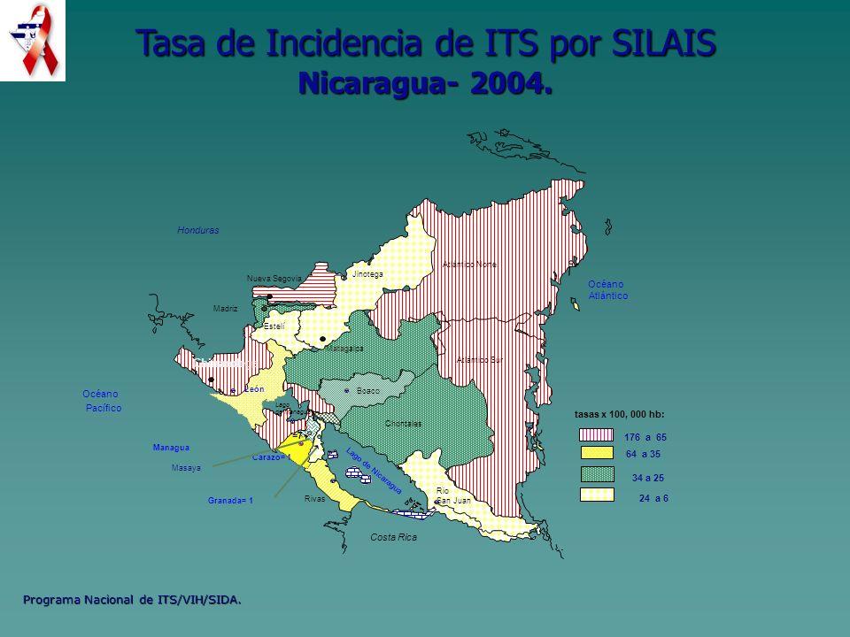 Tasa de Incidencia de ITS por SILAIS Nicaragua- 2004.