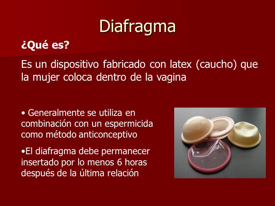 Diafragma ¿Qué es Es un dispositivo fabricado con latex (caucho) que la mujer coloca dentro de la vagina.