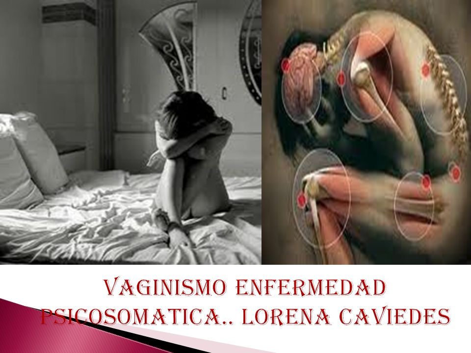 VAGINISMO ENFERMEDAD PSICOSOMATICA.. LORENA CAVIEDES