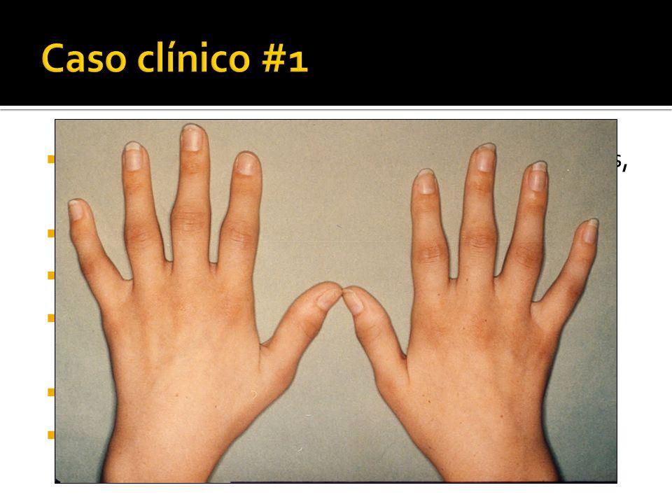 Caso clínico #1 Mujer de 33 años. 2 meses de artralgias en muñecas, codos, MCF, IFP, rodillas. Fatiga, rigidez matutina de 30 minutos.