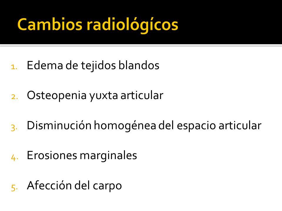 Cambios radiológícos Edema de tejidos blandos