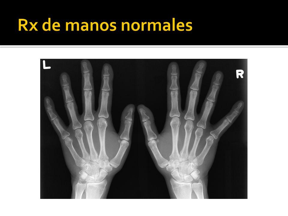Rx de manos normales