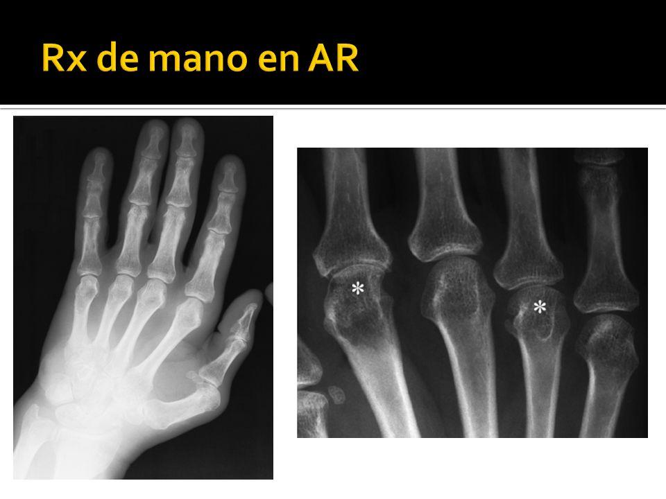 Rx de mano en AR
