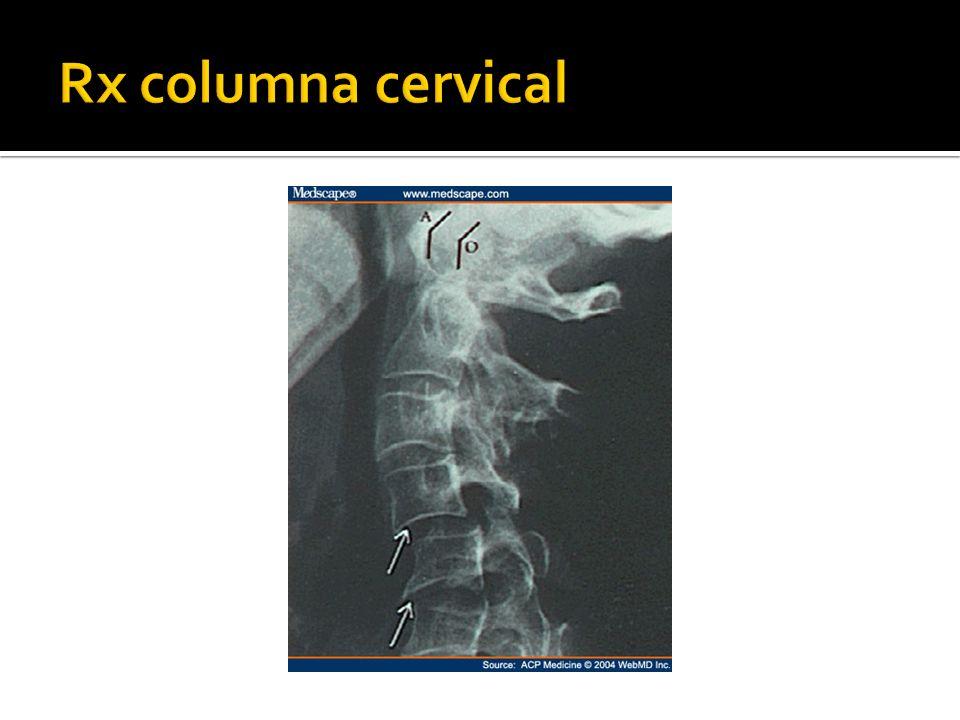 Rx columna cervical
