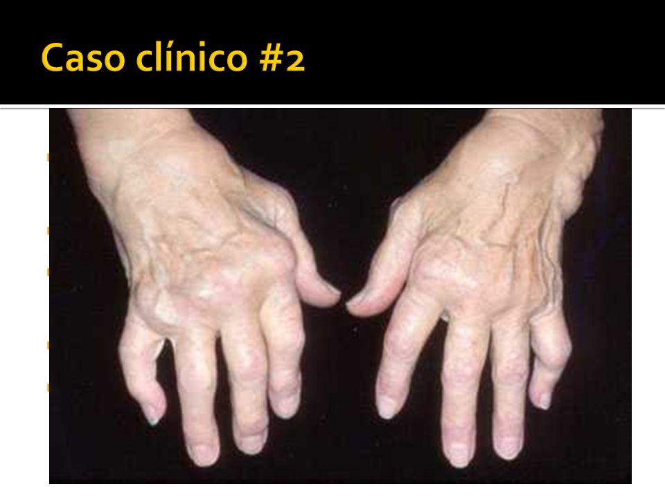 Caso clínico #2 Mujer de 50 años. 5 años de artralgias en manos, codos, rodillas, pies. Rigidez matutina de 2 horas, limitación funcional.