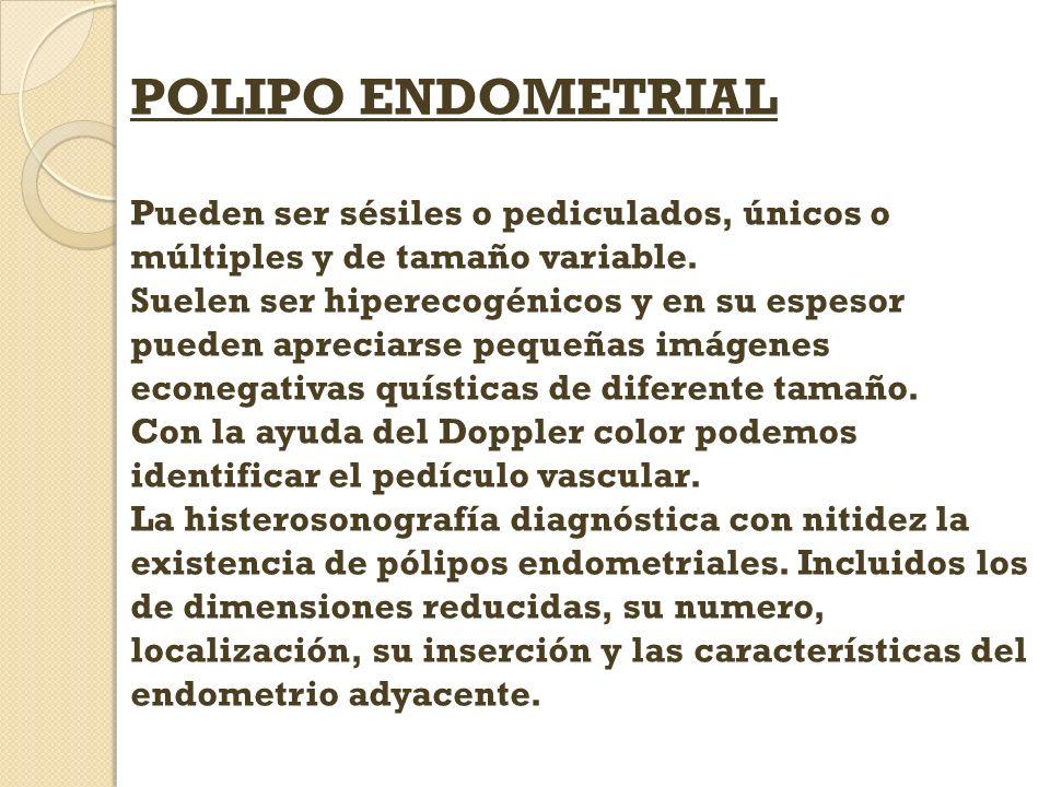 POLIPO ENDOMETRIAL Pueden ser sésiles o pediculados, únicos o múltiples y de tamaño variable.